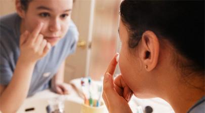 Patentado un nuevo tratamiento efectivo contra el acné
