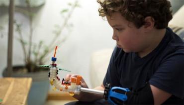 Niño de 9 años diseña una prótesis de mano que se adapta al crecimiento de los menores