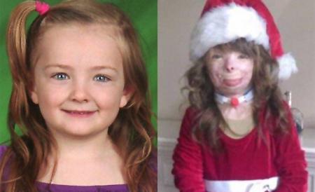 Miles de internautas felicitan la Navidad a una niña enferma