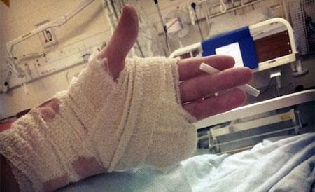 """Adolescente pierde un dedo en una rave y no va al hospital """"porque la música lo petaba"""""""