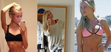 Joven anoréxica comparte su recuperación en Internet